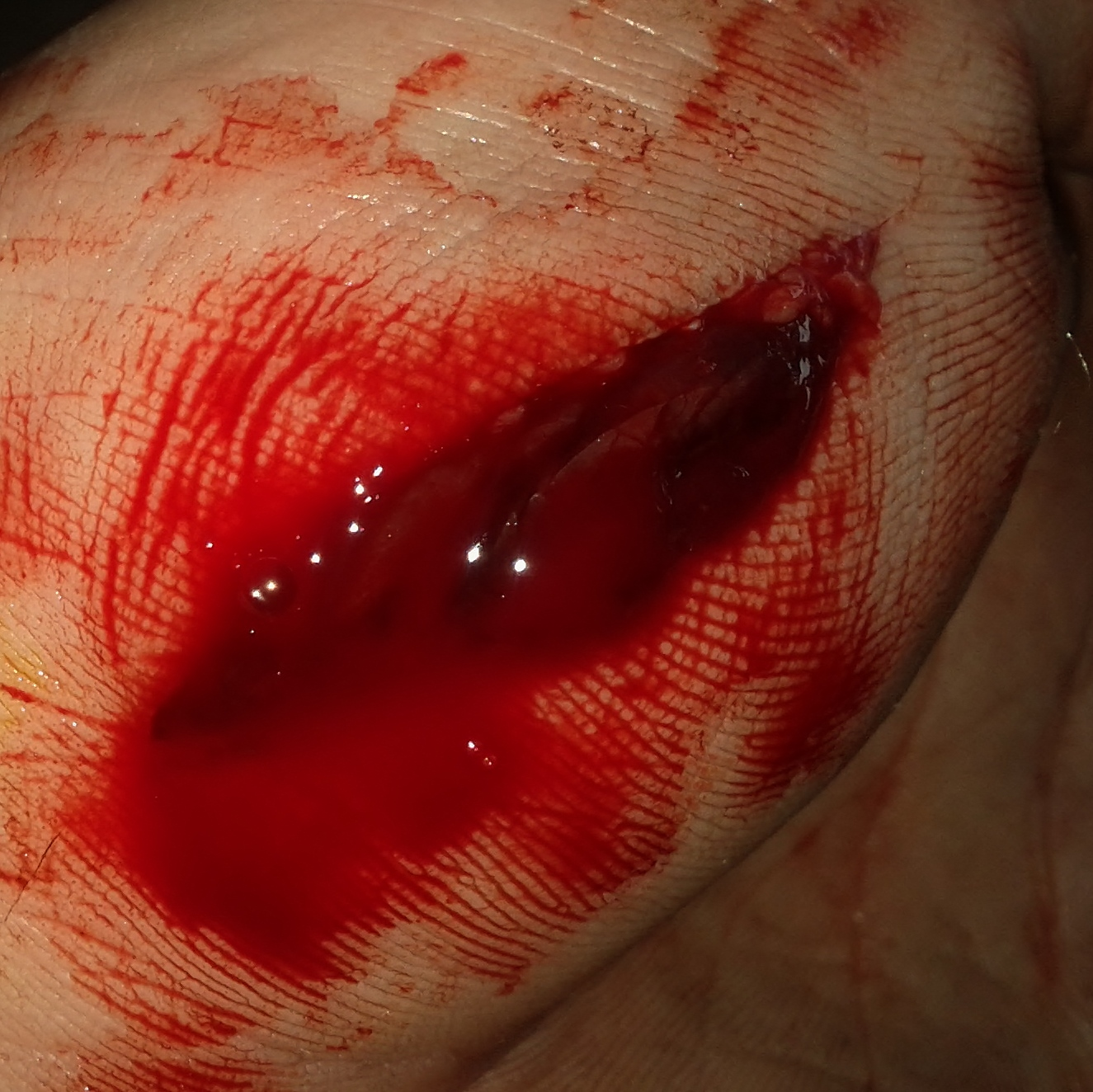 Broken Glass With Blood