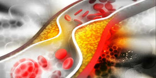 تخفيض نسبة الكوليسترول في الجسم