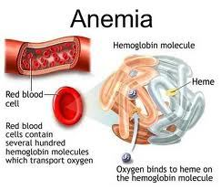 Definition of Hemolytic Anemia