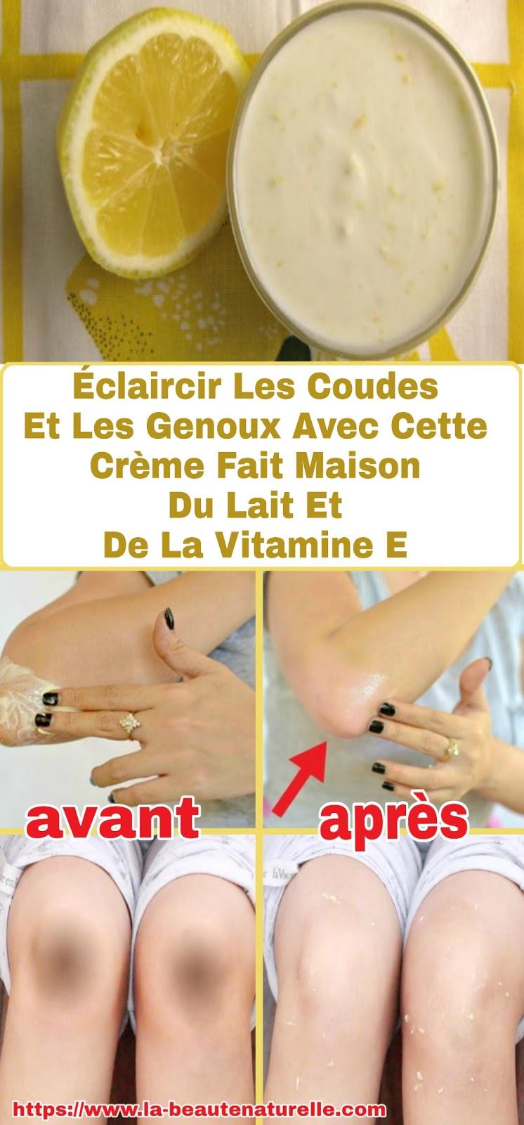 Éclaircir Les Coudes Et Les Genoux Avec Cette Crème Fait Maison Du Lait Et De La Vitamine E
