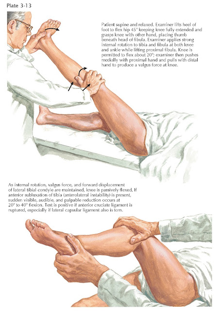 LATERAL PIVOT SHIFT TEST FOR ANTEROLATERAL KNEE INSTABILITY