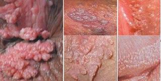 Gambar Cara Membersihkan Kondiloma Atau HPV Pria Wanita