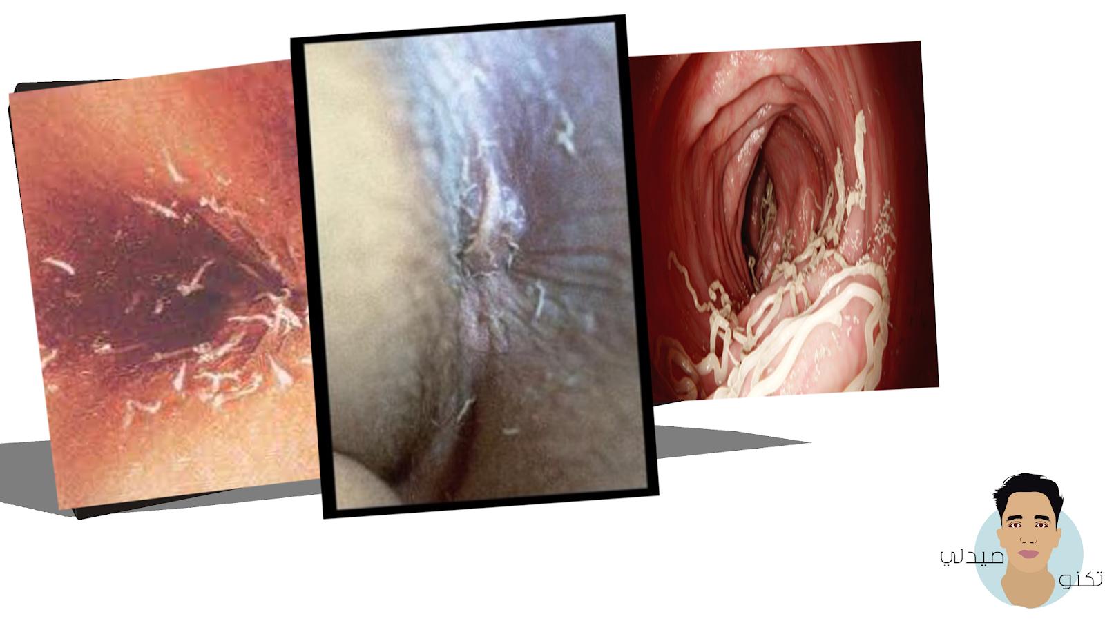 عدوي الدودة الدبوسية -الأعراض عند الكبار والاطفال- التشخيص والعلاج