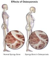 Gejala dan Akibat Osteoporosis