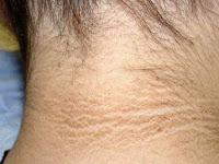 2 Cara Alami Mencerahkan Kulit Leher yang Menghitam Menurut dr. Reisa Broto Asmoro