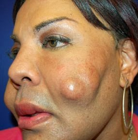 01 Woman whose face was filled with cement by fake plastic surgeon gets help