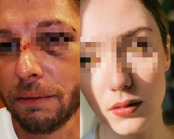 Lyon (69) : Traité de «sale blanc», un homme roué de coups dans la rue alors qu'il défend sa petite amie