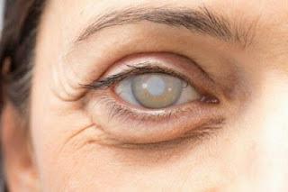 Obat Bintik Putih Di Kornea Mata Herbal