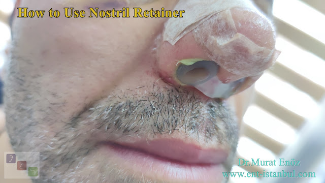 How to Use Nostril Retainer?