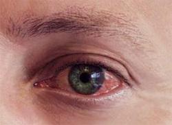 Как предотвратить покраснение глаз