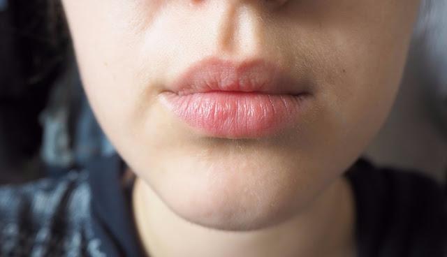 Lips before treatment