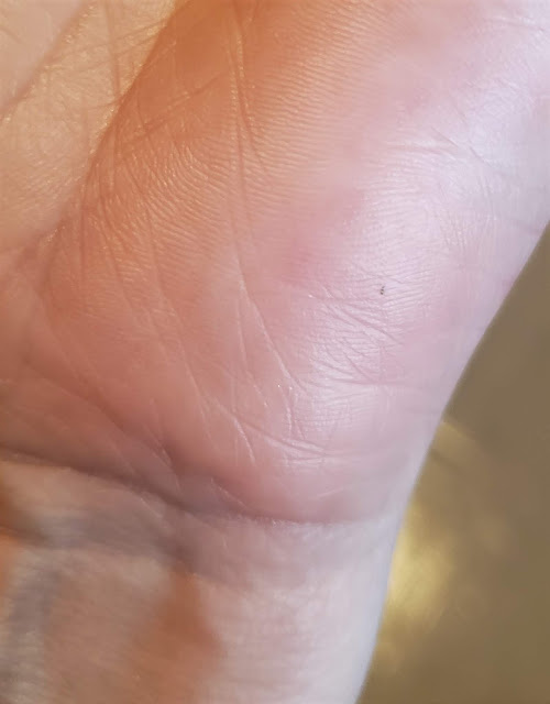 black dot from wasp sting