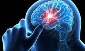 Η ουσία που προλαμβάνει το εγκεφαλικό -Σε ποιες τροφές θα τη βρείτε