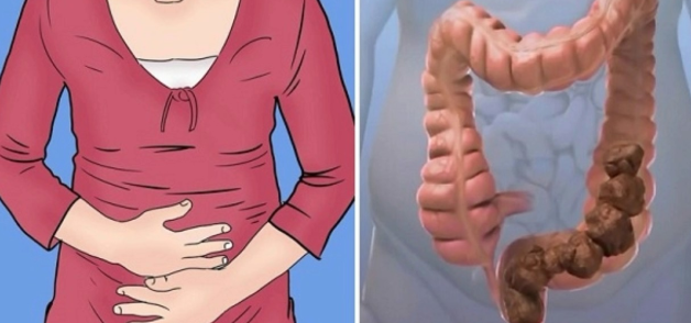 #You Are NOT Fat! #You Only Have 'Poop' #Stuck In Your Belly#Health