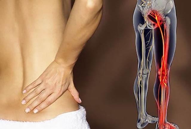 Quan hệ tình dục sẽ làm cho các cơn đau thần kinh tọa trầm trọng hơn
