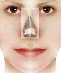Crooked nose Meaning, Symptoms, Cause, Surgery, Celebrities