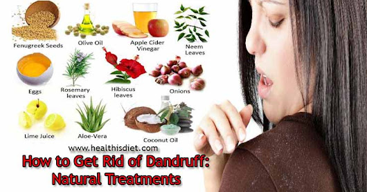 How to Get Rid of Dandruff : Natural Treatments