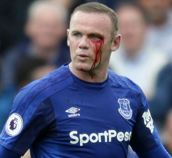 Wayne Rooney Surfers Eye Injury During Clash With Bournemouth (See Photos)