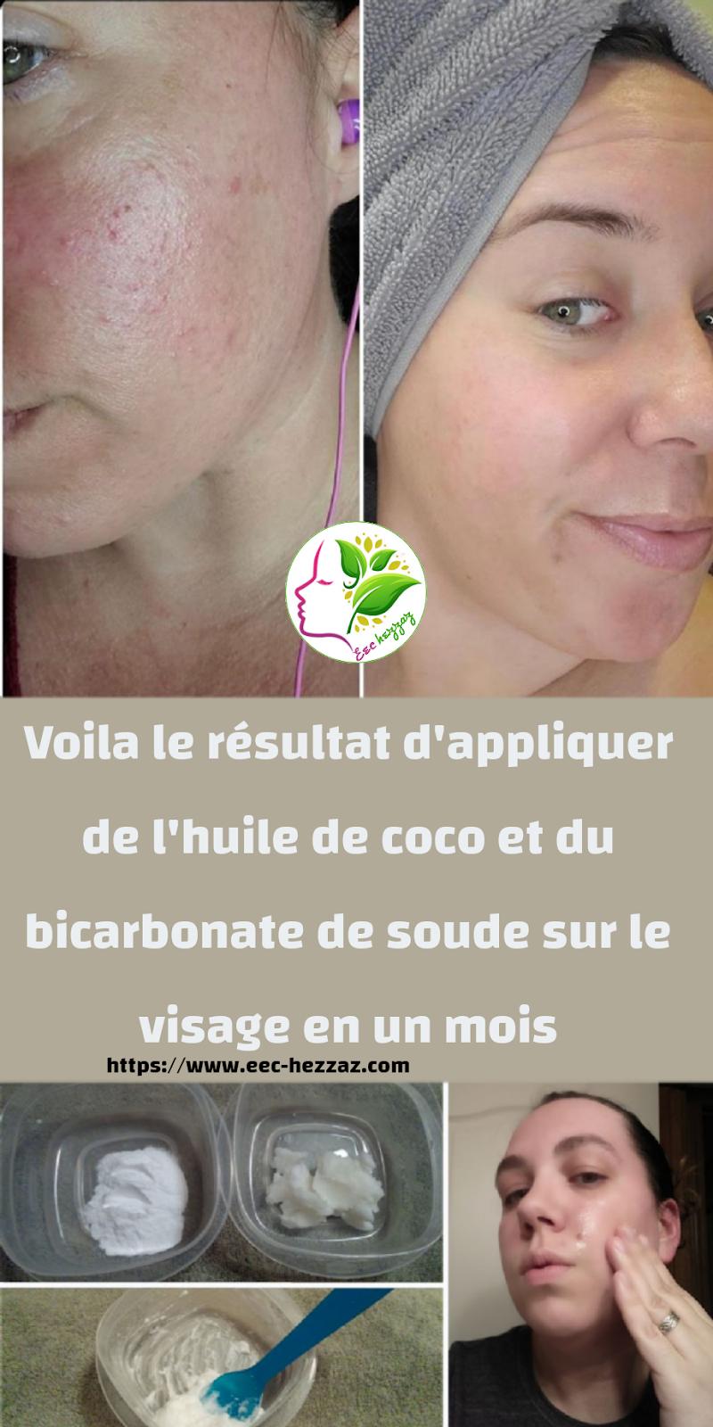 Voila le résultat d'appliquer de l'huile de coco et du bicarbonate de soude sur le visage en un mois