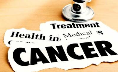 10 Jenis Kanser Utama Yang Kerap Menyerang Rakyat Malaysia