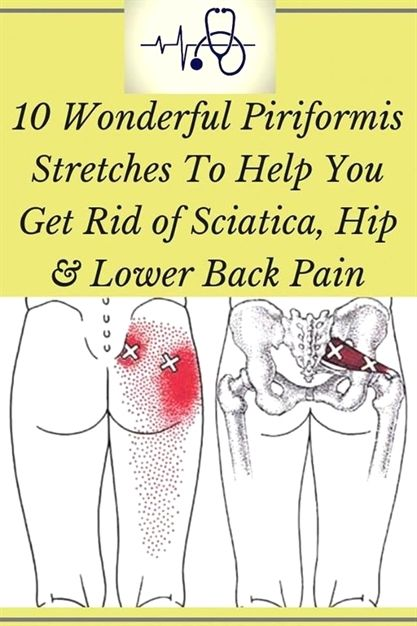 10 Simple Stretches That Will Eliminate Lower Back, Hip And Sciatica Pain