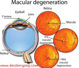 Type of Age-related macular degeneration : 1)Dry macular degeneration 2) wet macular degeneration