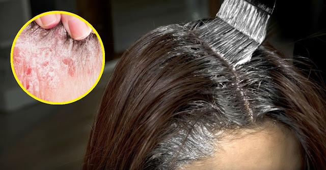 Choses à considérer avant de teindre les cheveux (si vous souffrez de psoriasis)