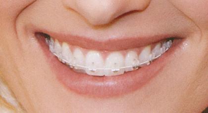 fogok fogni fogszabályozó után