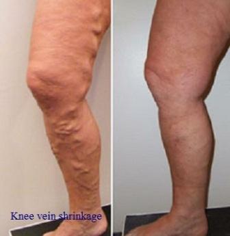 होम्योपैथी इलाज घुटने की नस सिकुड़ जाने का