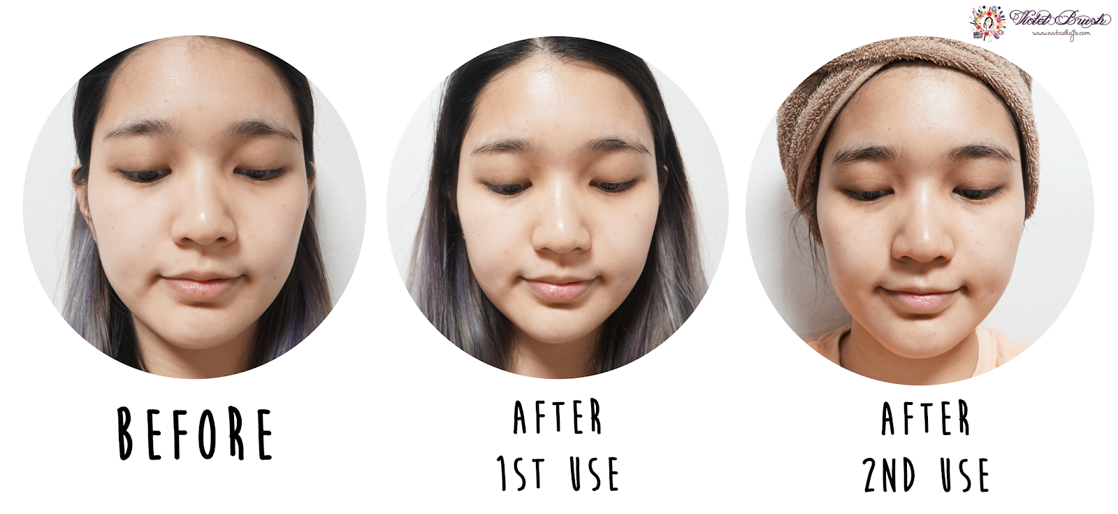 derma-roller-review-by-indonesian-beauty-blogger-results-before-after