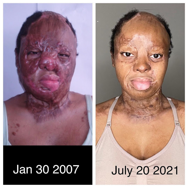 I Thank God for where he brought me- Plane Crash Survivor shares her Before and After Pictures