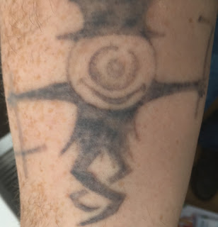 24 hours after picosure laser tattoo removal