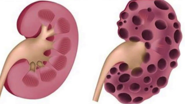 These 8 habits Can Severely Damage your Kidney!
