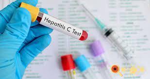 Secretaria de Saúde oferece neste sábado (31) testes de hepatite C no bairro Portal da Pérola 2