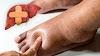 7 sinais de problemas no fígado que seus pés podem revelar