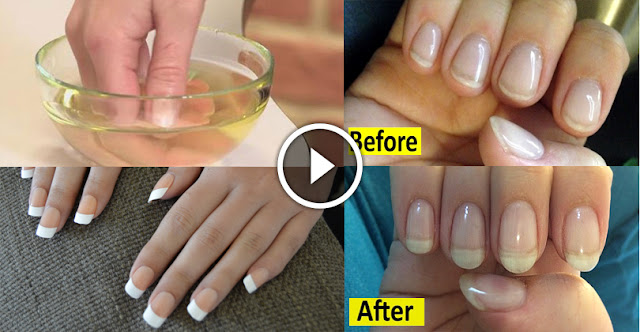How To Grow Nails Very Fast In 7 Days!