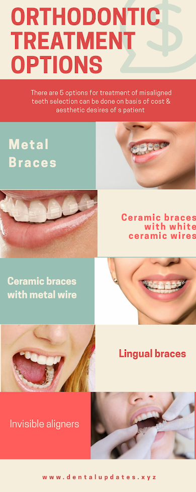 Orthodontic treatment options metal braces ,ceramic braces ,aligners,veneers