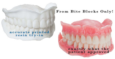 DigiDenture – An Economy Digital Denture that Yields Outstanding Prosthetics