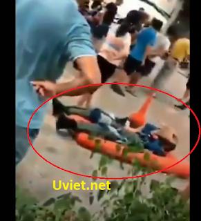 Phi công Trung Quốc đang bị thương nằm cấp cứu