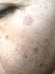 顔の黒ずみは体のゴミのあらわれです。