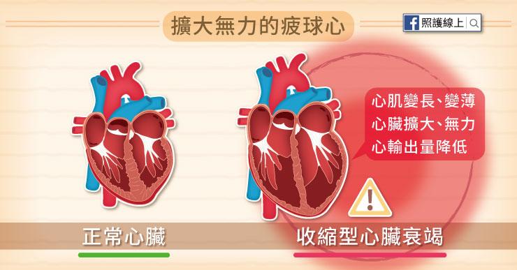 心肌變長、變薄,心臟擴大又無力,所以心臟衰竭又被稱作「疲球心」