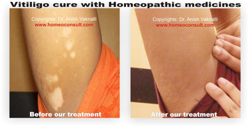 Homeoconsult Rd Vitiligo Homeopathy Treatment Medicine Mumbai India
