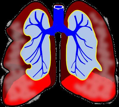 5 Manfaat Cabe Untuk Kesehatan Tubuh