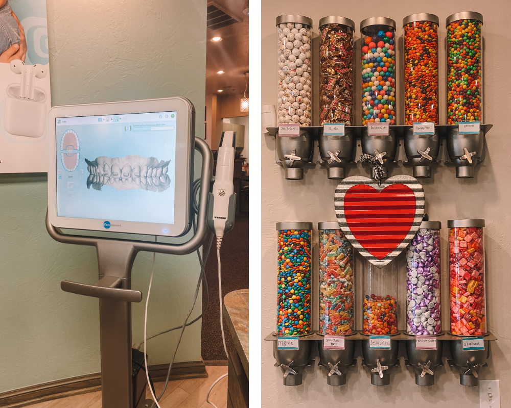 a glimpse into the Lewis Orthodontics office including the 3d scan and the candy bar