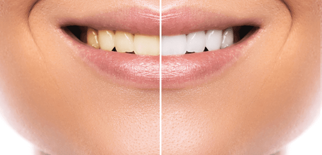 professional teeth whitening vs at home By Barbies Beauty Bits