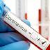 Orang Pontianak Temukan Obat Corona Formav-D, Ini Penjelasan Dinkes Kalbar