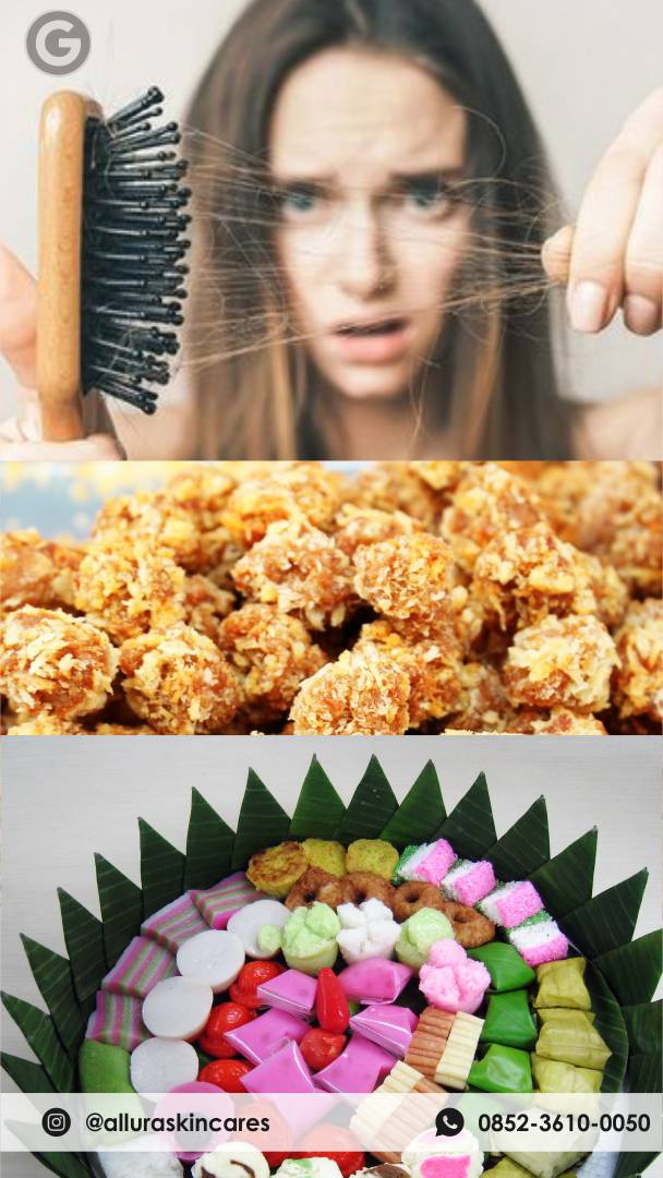 JANGAN BERLEBIHAN!!! Ini Dia Makanan Penyebab Rambut Rontok