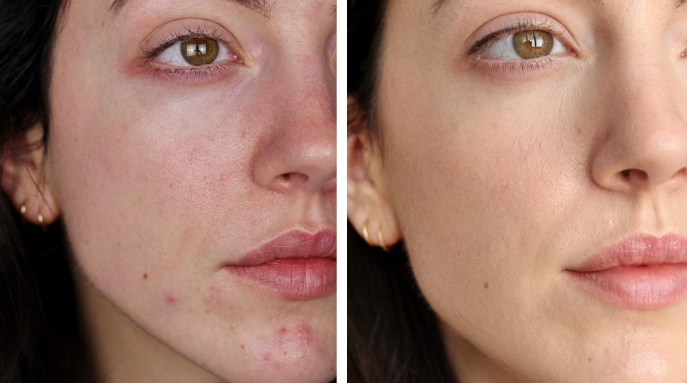 Gesichtspflege Routine für empfindliche Haut