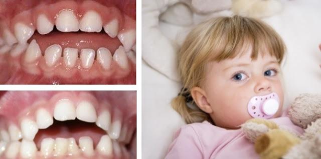 Cosa devi sapere sui ciucci e sui problemi dentali dei bambini