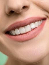 تبييض الاسنان: العلاجات المنزلية السريعة والفعالة لتبييض الاسنان